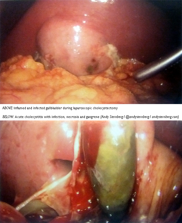 images of infected gallbladder during gallbladder removal gangrene infected laparoscopic cholecystectomy surgery infection health